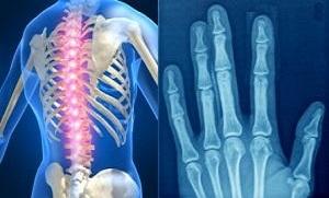 روماتولوژی (Rheumatology) چیست؟